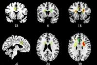 Ученые впервые определили воздействие любви на мозг