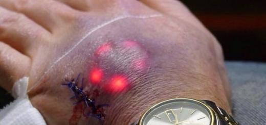 Биохакеры подсветят татуировки светодиодным имплантатом