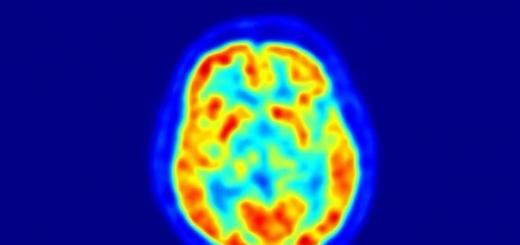 Впервые найдены группы генов, управляющие интеллектом человека