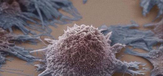 Ограничение потребления раковыми клетками глюкозы может быть ключом к успешному лечению рака