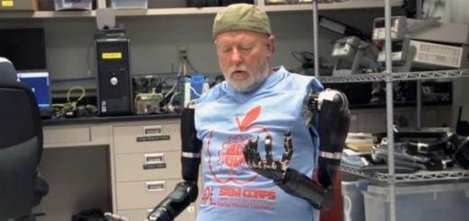 Пациента научили управлять сразу двумя протезами рук силой мысли
